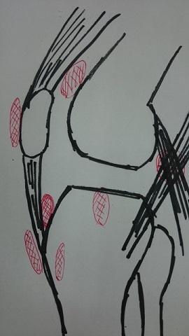 膝周囲の滑液包